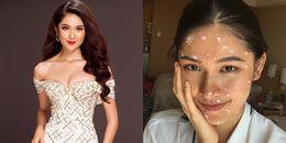 Đại diện Việt Nam bất ngờ bị thủy đậu trước thềm Chung kết Hoa hậu Quốc tế 2017