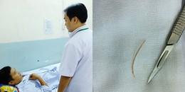 TP.HCM: 3 bệnh nhân bị thủng ruột do nuốt tăm xỉa răng, xương cá mà không hề hay biết