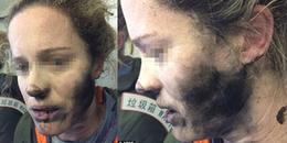 Góc Cảnh Giác: Đeo tai nghe khi đi máy bay khiến cô gái bị cháy tóc, bỏng mặt