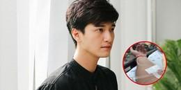 Lộ ảnh Huỳnh Anh cấp cứu tại bệnh viện: Lý do đi trễ, bỏ show và phải đền 90 triệu là đây?