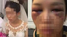 Sự thật ngã ngửa đằng sau bức hình cô dâu